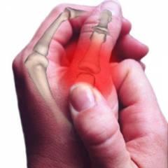 artritas arba sąnarių uždegimas tepalas į artrito nuo rankų sąnarių