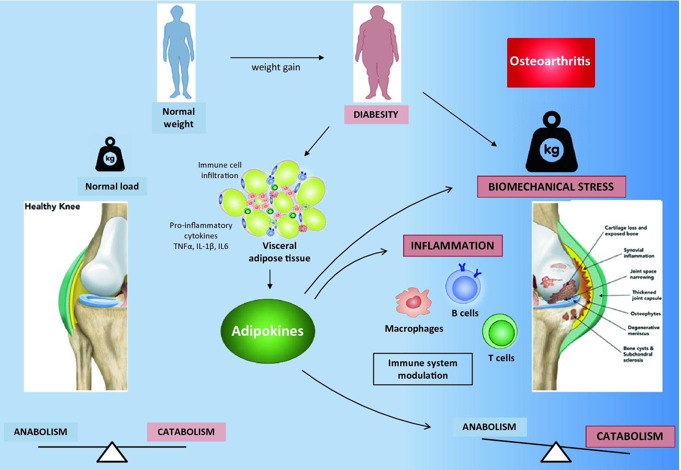 gerklės sąnarių pečių ir alkūnė gydymas