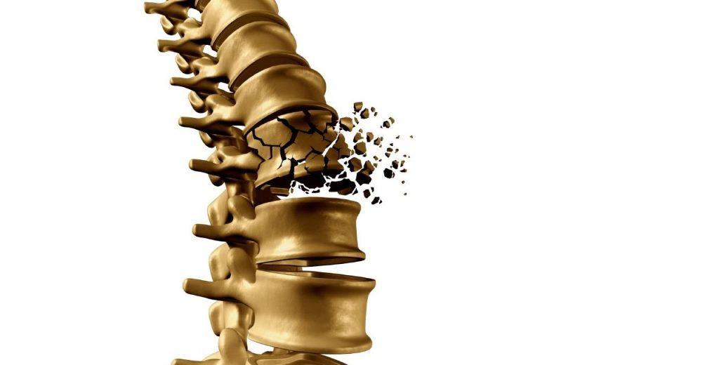 nugaros osteochondrozė suskirstytas sąnarių skausmas