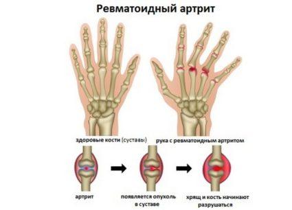 iškilimų ant rankos liaudies gynimo sąnarių kamieninės ląstelės gydymas sąnarių