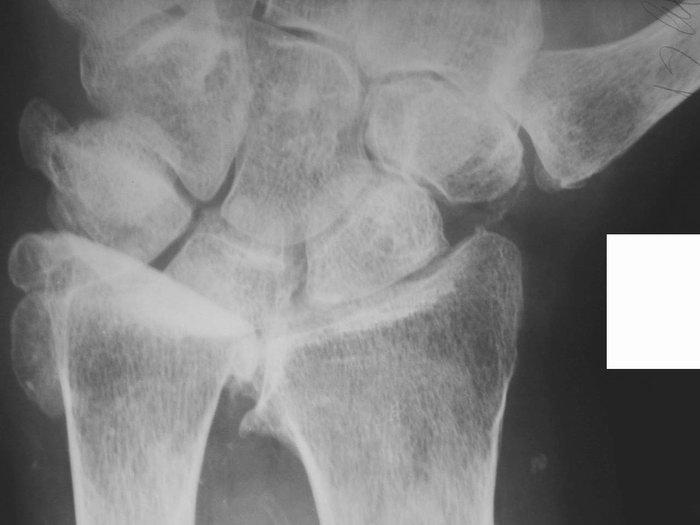 poliartritas artrosis gydymas