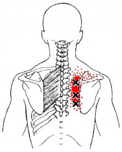 kas atsitinka su bendru artrozės kremas šarnyrai su arnica