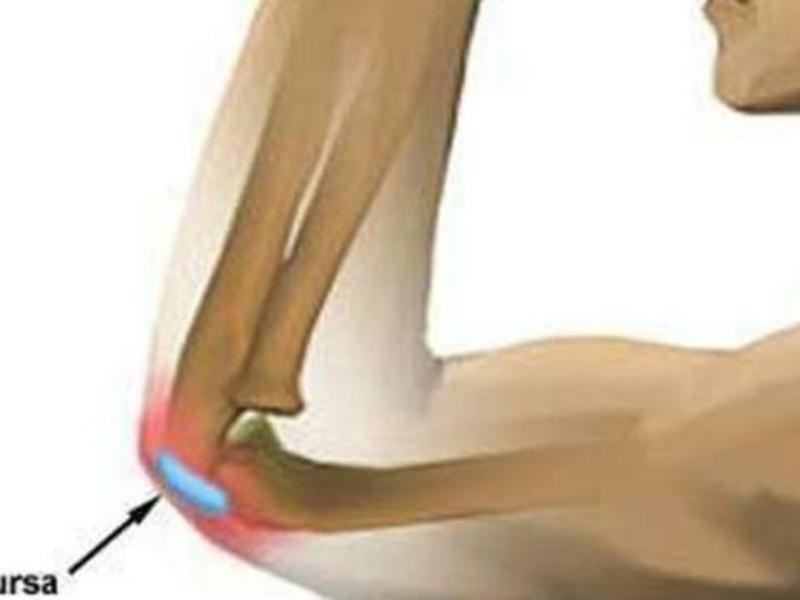 gydymas sąnarių semashko artrozė jungtiniame