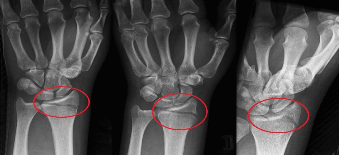 artrito sąnariai 2 kiek tai