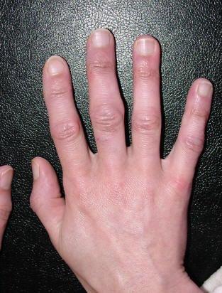 tepalu artritu šepečių rankas