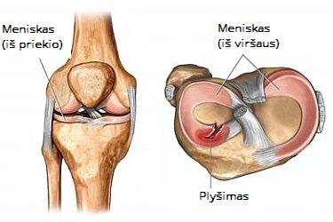 iš kurių sąnariai ir raumenys gali pakenkti ką ir kaip gydyti artritą