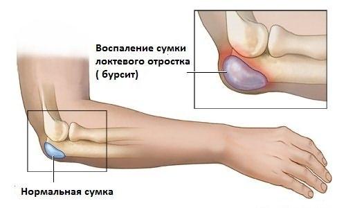 sisteminė artrozė gydymas stiprūs skausmą raumenų ir sąnarių