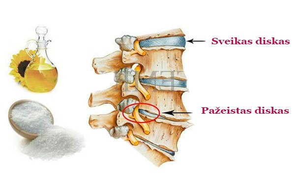 priemonės nuo osteochondrozės skausmas ne plokščiapėdiškumas sąnarių