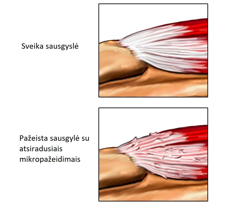 edema netoli alkūnės sąnario sunu displazijos tyrimai kaune