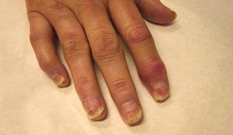 jei sąnariai skauda pečių infekcinės sąnarių uždegimą