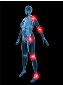 pošalmį gydymas sąnarių fapick sąnarių skausmas