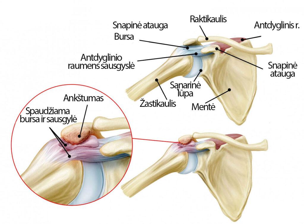 kairio peties skausmas plintantis i pazastis skauda dešinįjį sąnario