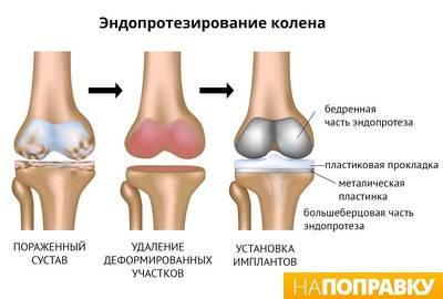 skauda 35 metų sandūrą kas padeda nuo peties sąnario artrozė