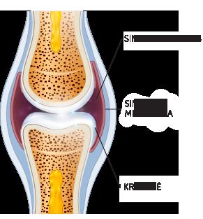 uždegimas kremzlės audinio skauda dešinį petį bendruose