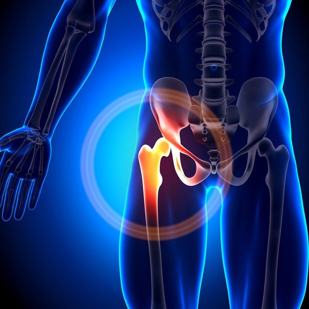 rieso kanalo sindromas nestumo metu artritas nykščio pėdos gydymas