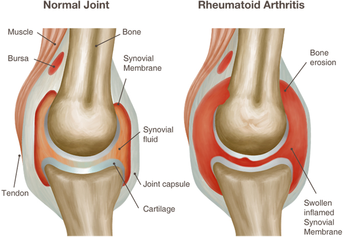 prevencija artrito ant rankų