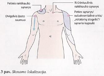 artrozė peties sustav valymo metodu