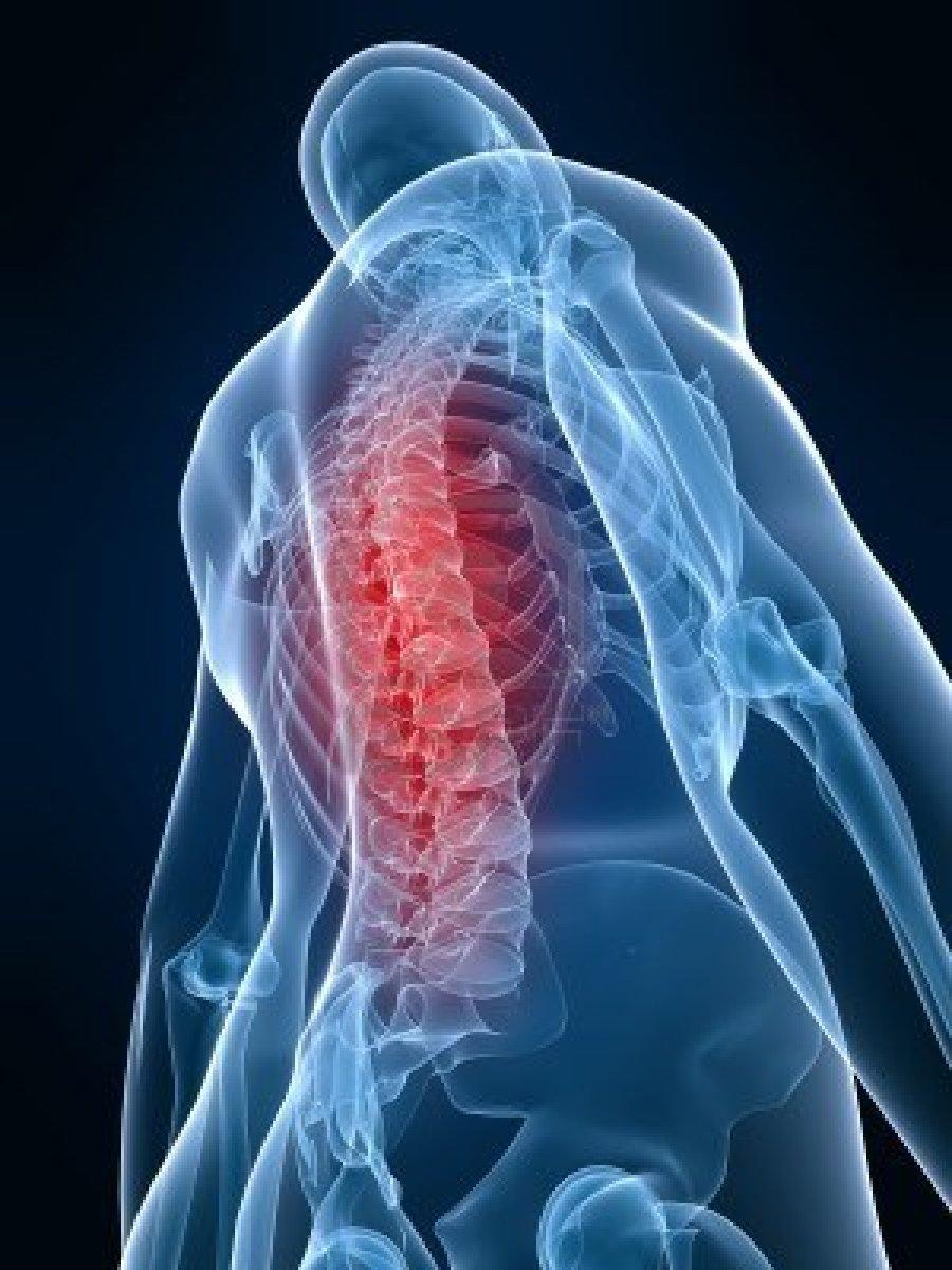 liga alkūnės sąnario epikondilitą gydymo liaudies metodai gydant uždegimą sąnariuose