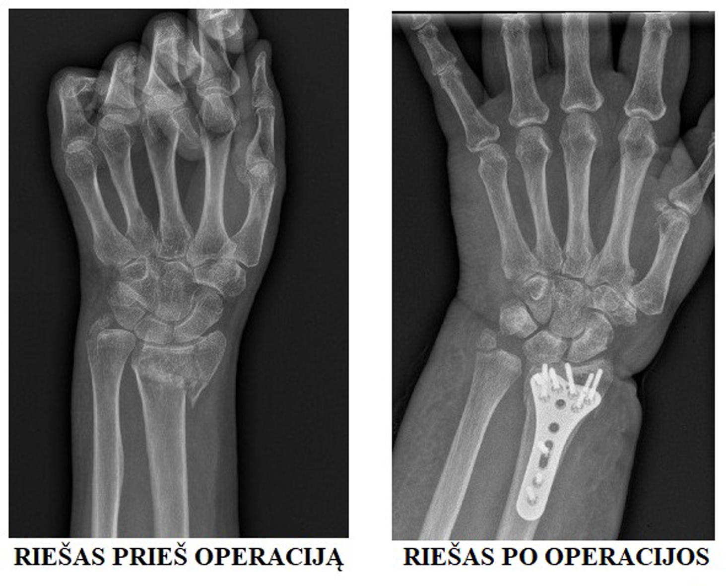 lūžis radialinio kaulais alkūnės sąnario gydymas skausmas alkūnės sąnario dešinėje gydymo