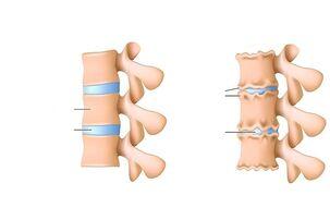 kepenų skausmas sustava kaip sumazinti sanariu traskejima