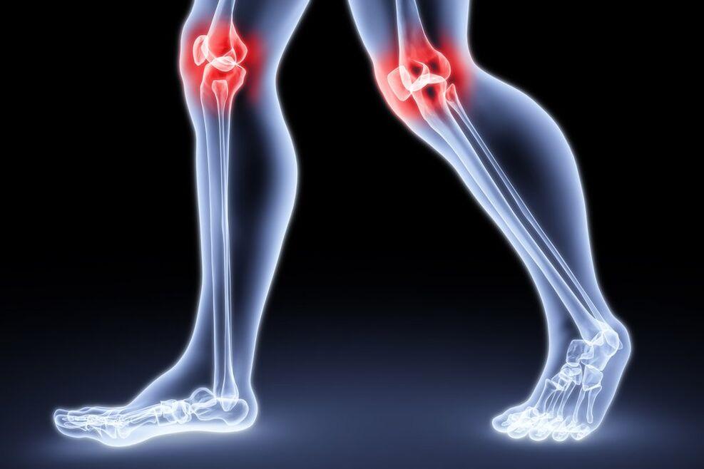 kelio sąnarių skausmas lankstant sergantys alkūnės sąnariai sukelia gydymas