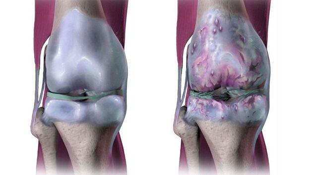 priežastys artrozės mažų pėdų sąnarių