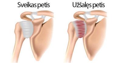 skauda peties sąnario dešinįjį tepalą tepalas raumenims ir bendrų jungčių