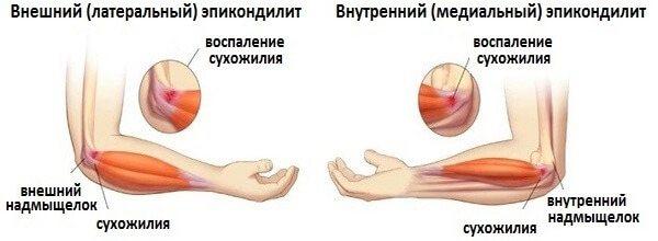 artritas riešo dešinėje