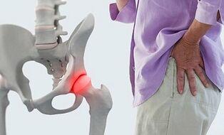 sąnarių uždegimą kaip pašalinti skausmą