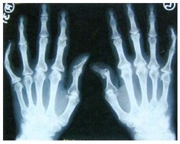 artrozė arba artrito gydymo rankų