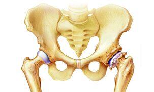artrozė gydymas liaudies gynimo pašalinti iš pėdos sąnarių uždegimą