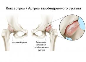 lakiųjų sąnarių skausmas yra vaistinio gelis sąnarių