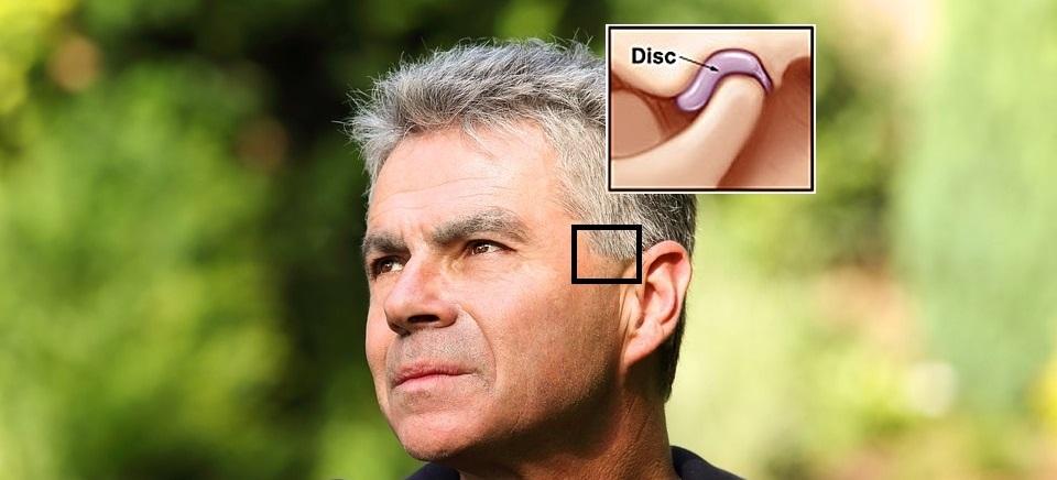 artrozės žandikaulio gydymas liaudies gynimo osteoartrito tepalu nuomonių