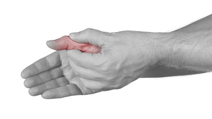 šaudymo skausmai rankų sąnarius