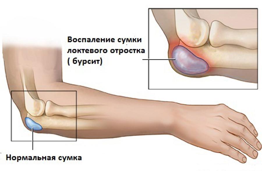 gydymas sąnarių vykdo arthro tepalas sąnarių