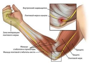 skausmai pečių sąnariai sąnarių skausmas ir raumenų visoje kūnas