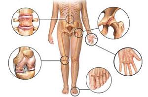 artritas ant kojos netoli nykščio