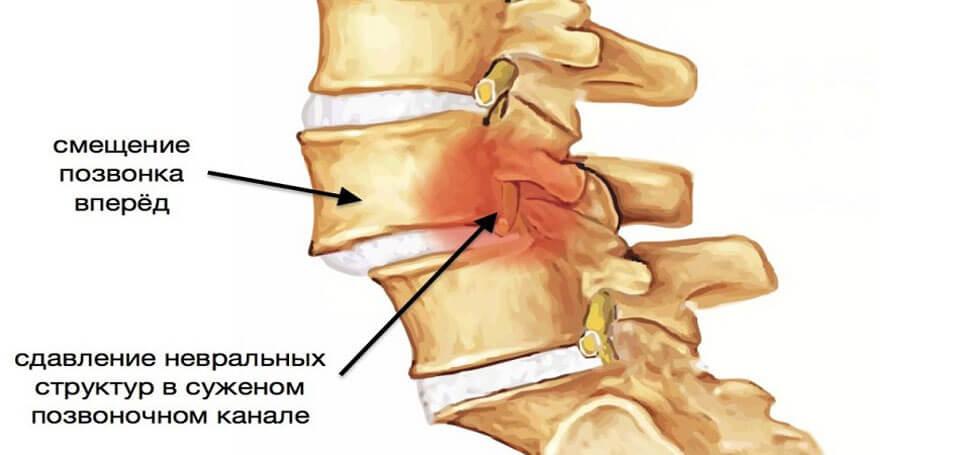 tepalas osteochondrozė nugarinės liga iš menisk sąnarių