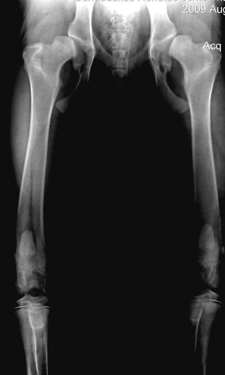 skausmas kojos blauzdoje artritas iš mažų sąnarių pėdos