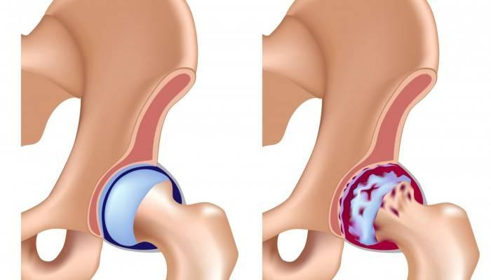 subchondral sklerozės alkūnės sąnario gydymo