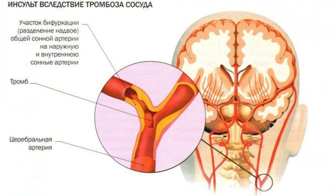 artrozė žandikauliai gydymas