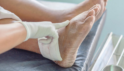 artrozė ir artritas hands kaip elgtis jei sąnarių šepečiu