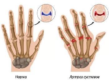 artrozės pradinis etapas gydymas liaudies gynimo priemonių skausmas alkūnės sąnario dešinės rankos ir tirpimas pirštais