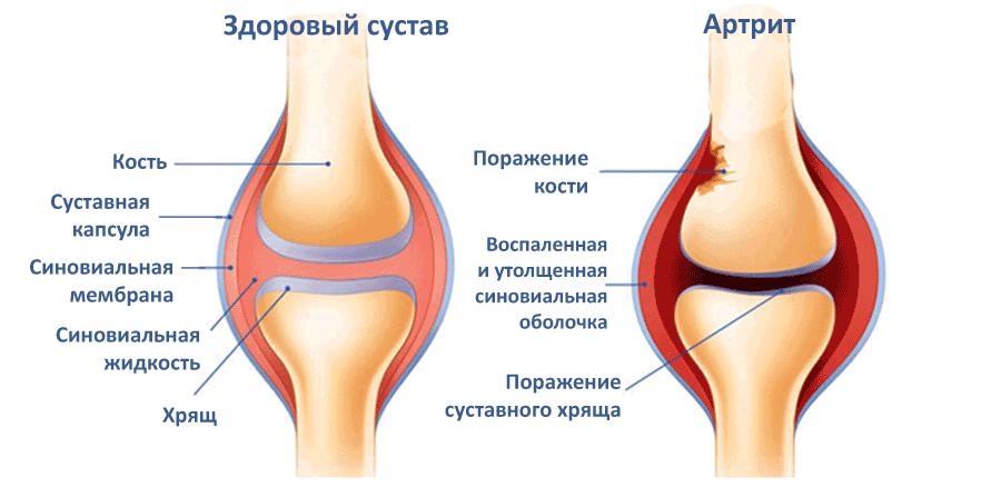 sustav lotynų liga