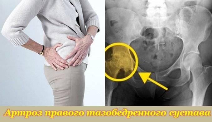 artrozė gydymo iš liaudies metodu