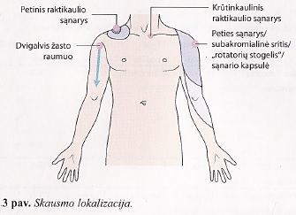 osteoartrito alkūnės