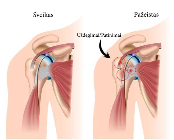 nervų ligos sąnarių reumatoidinis poliartritas