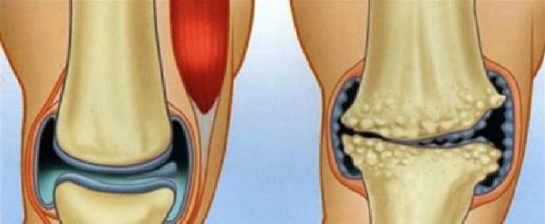 geriausi vaistai nuo sanariu skausmo petį sąnarių skausmas nudažyti reumatoidinis