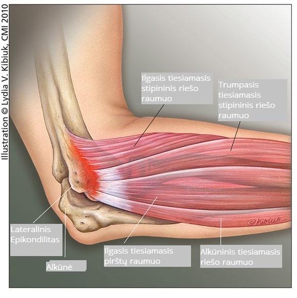 kompozicija skirta pašalinti sąnarių skausmą artrozė gydymas ir profilaktika