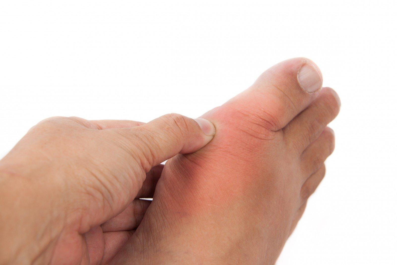 reumatoidinio artrito kraujo tyrimas lieknėjimo sąnarių skausmą